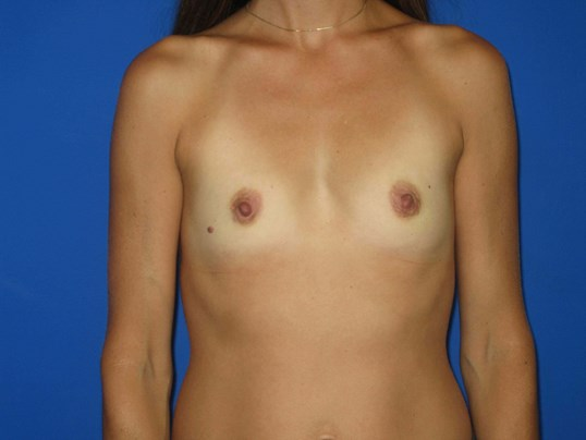 Breast Augmenation Before