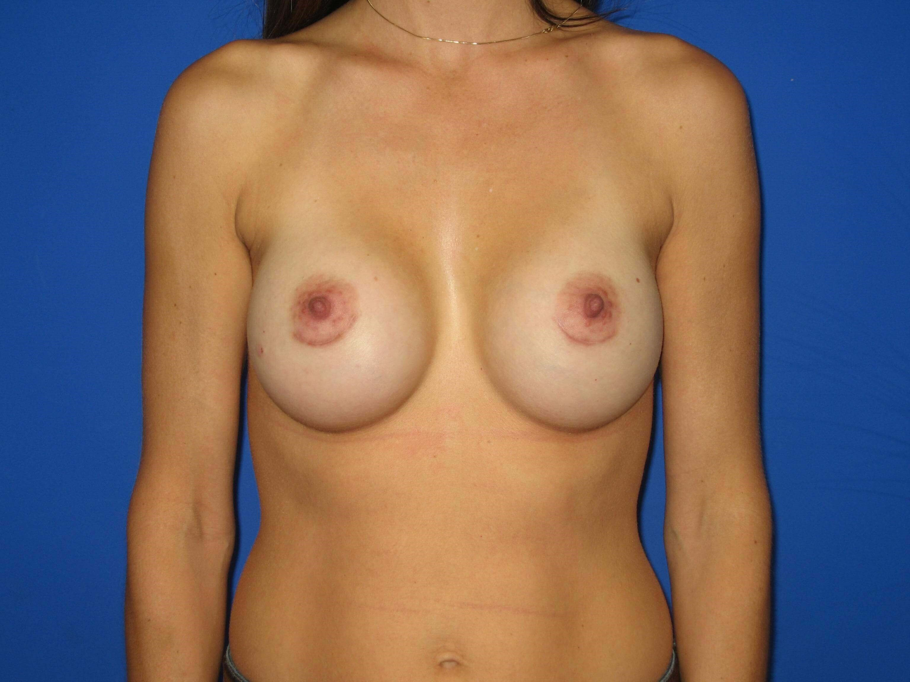 Breast Augmenation After