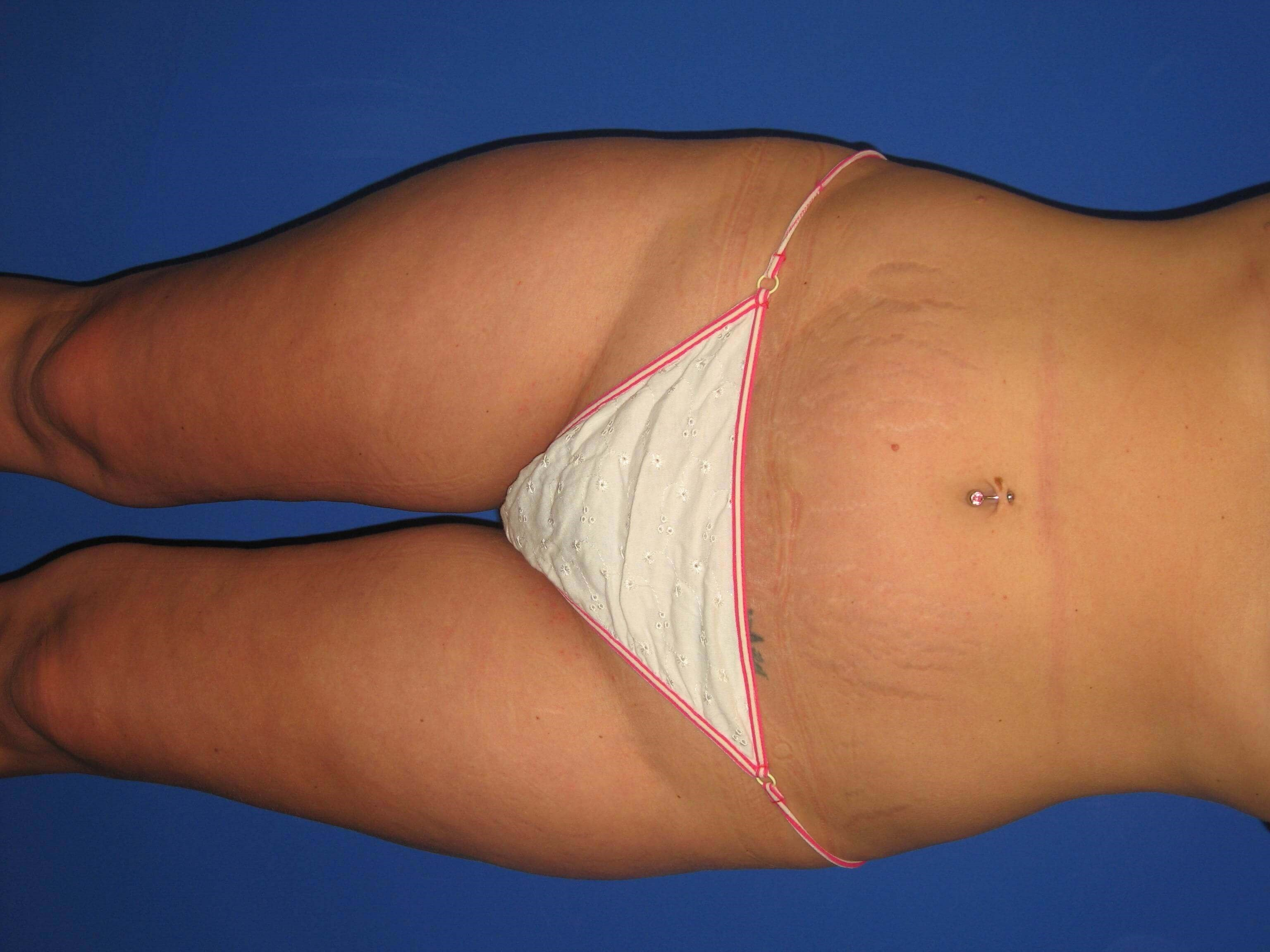 Mini Tummy Tuck Before