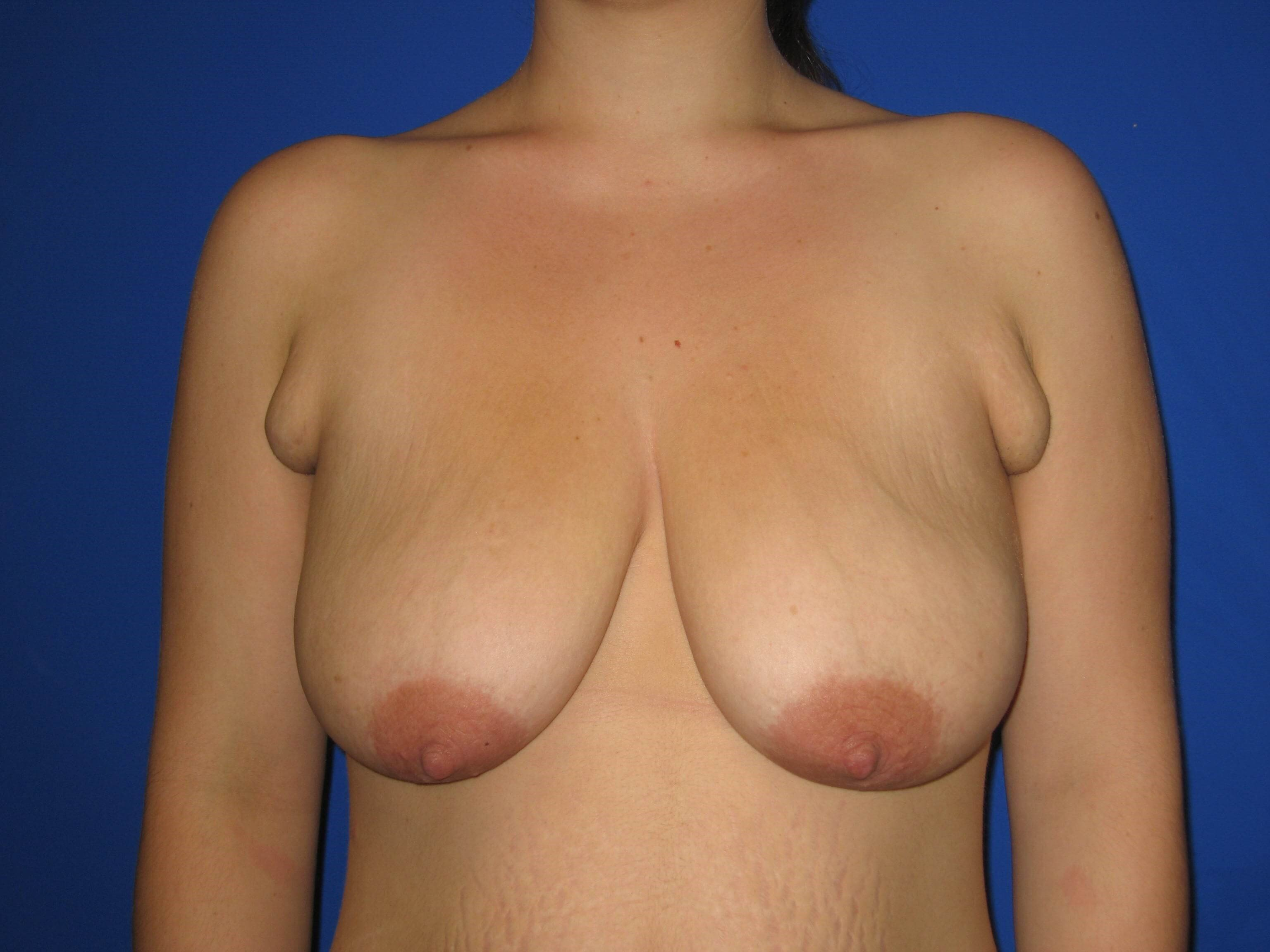 Breast Lift or Mastopexy Before