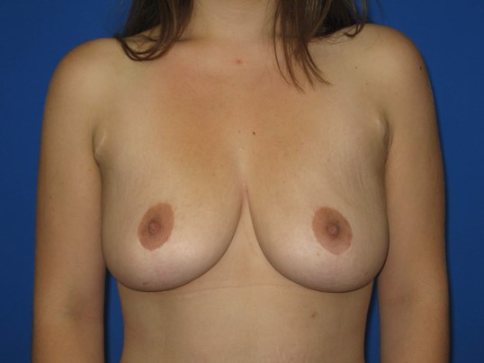 Breast Lift or Mastopexy After