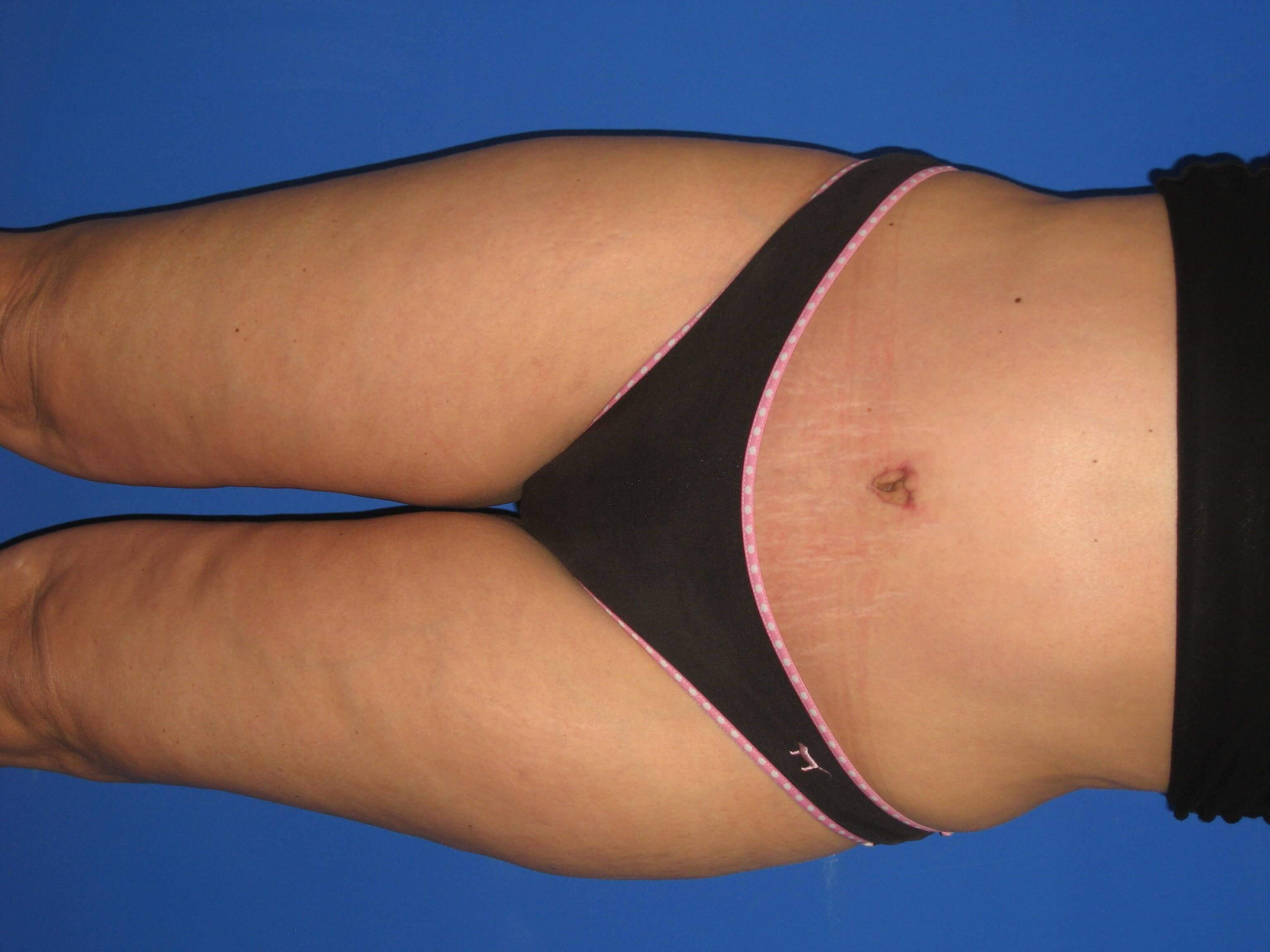 Tummy Tuck Views After