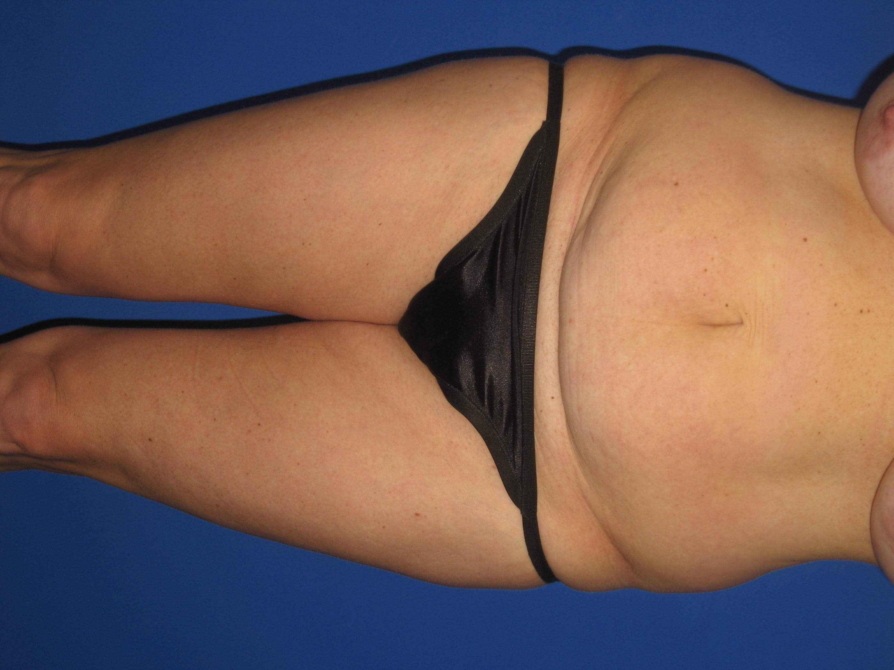 Front View tummy tuck Before