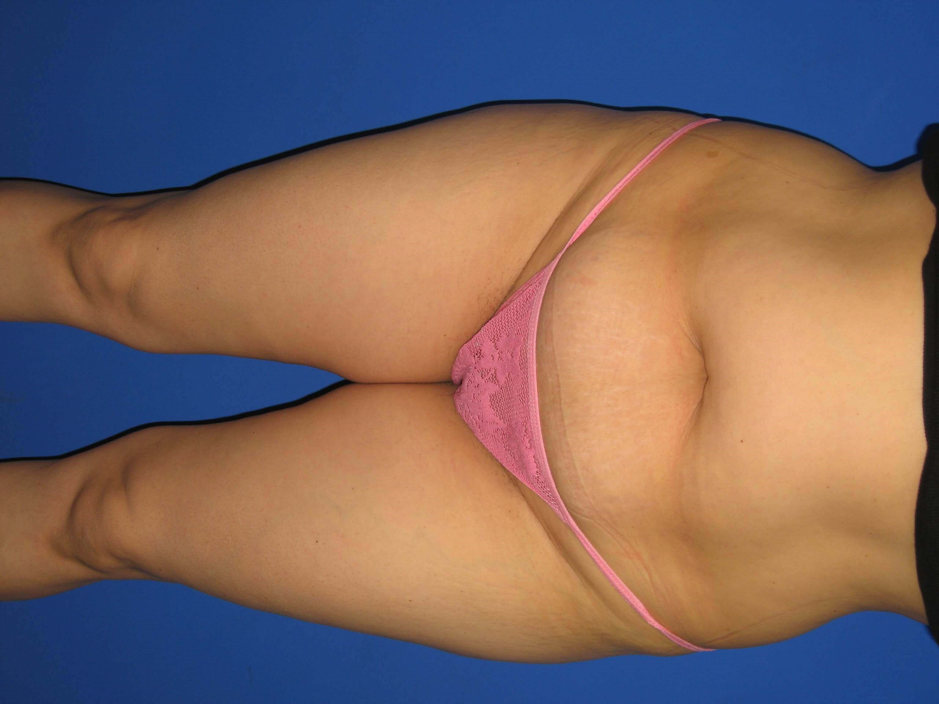 Tummy Tuck View Before