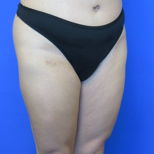 Tummy Tuck View After