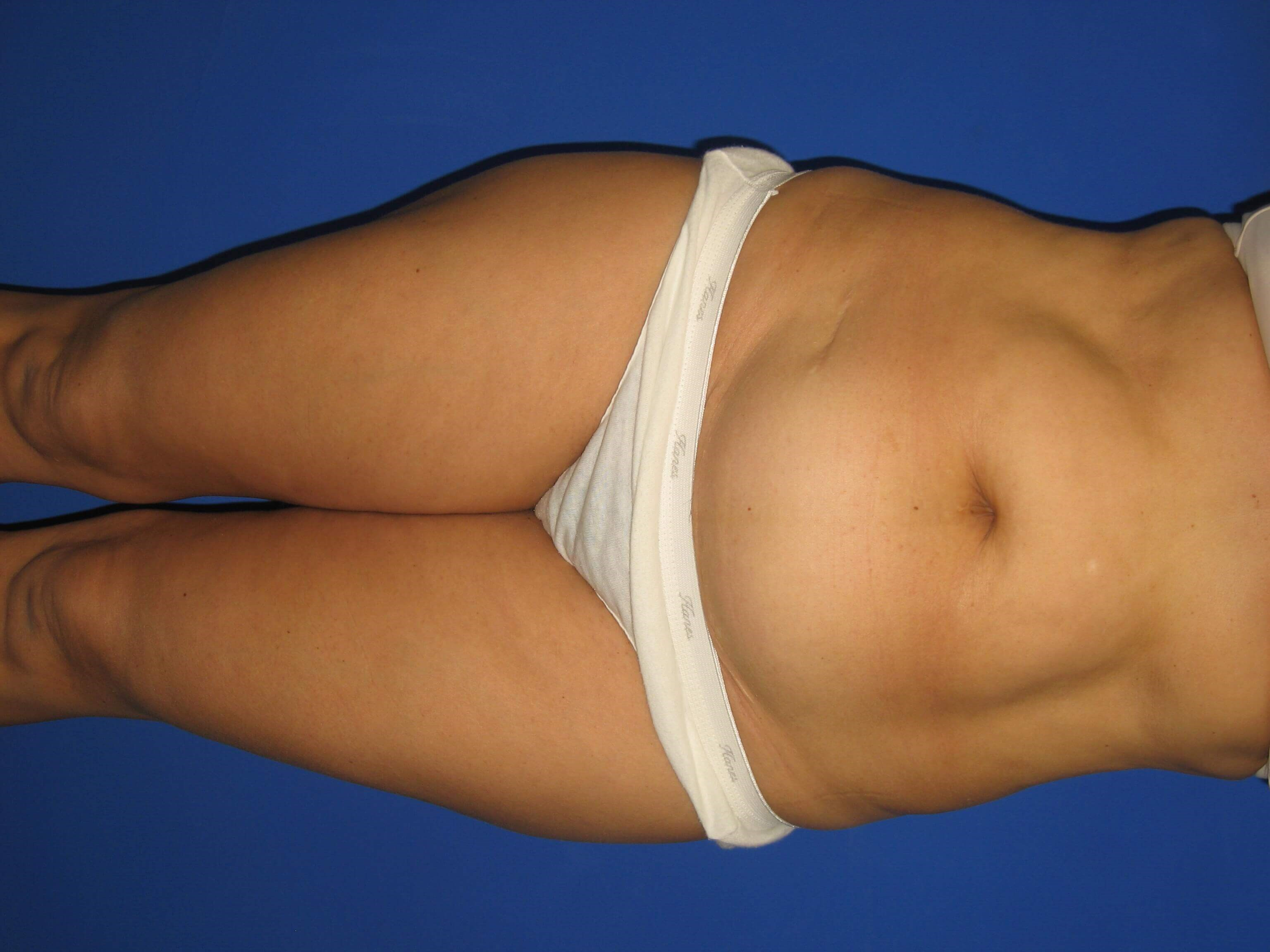 Tummy Tuck Views Before