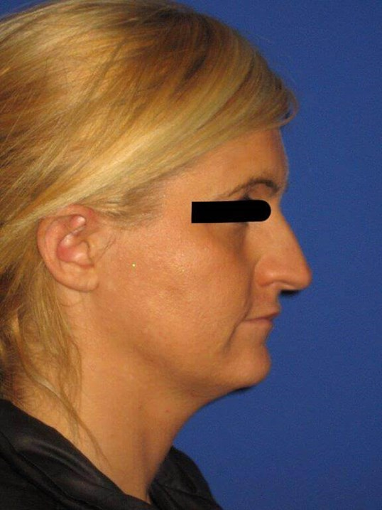 Rhinoplasty View Before