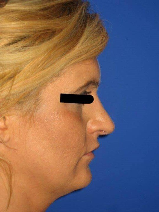 Rhinoplasty View After
