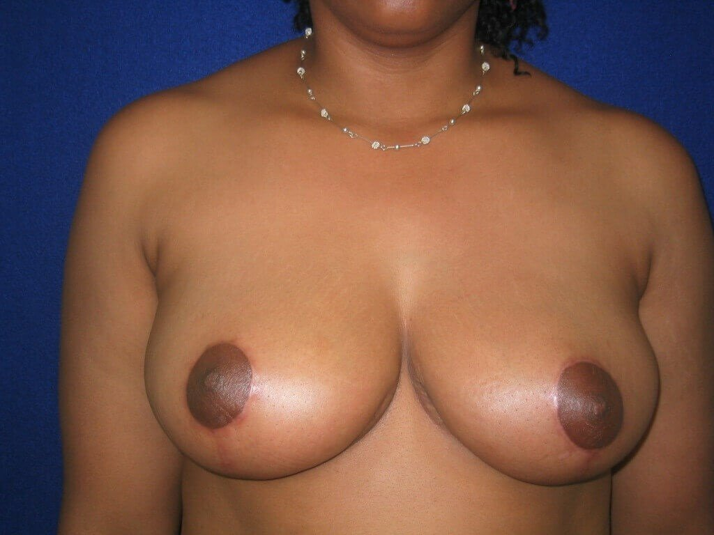 Breasts Reduction After