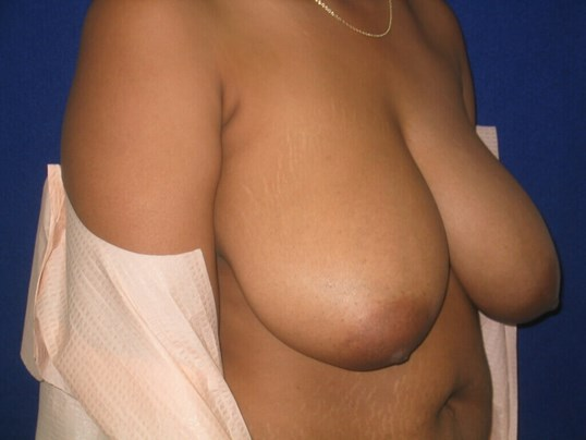 Breasts Reduction Before
