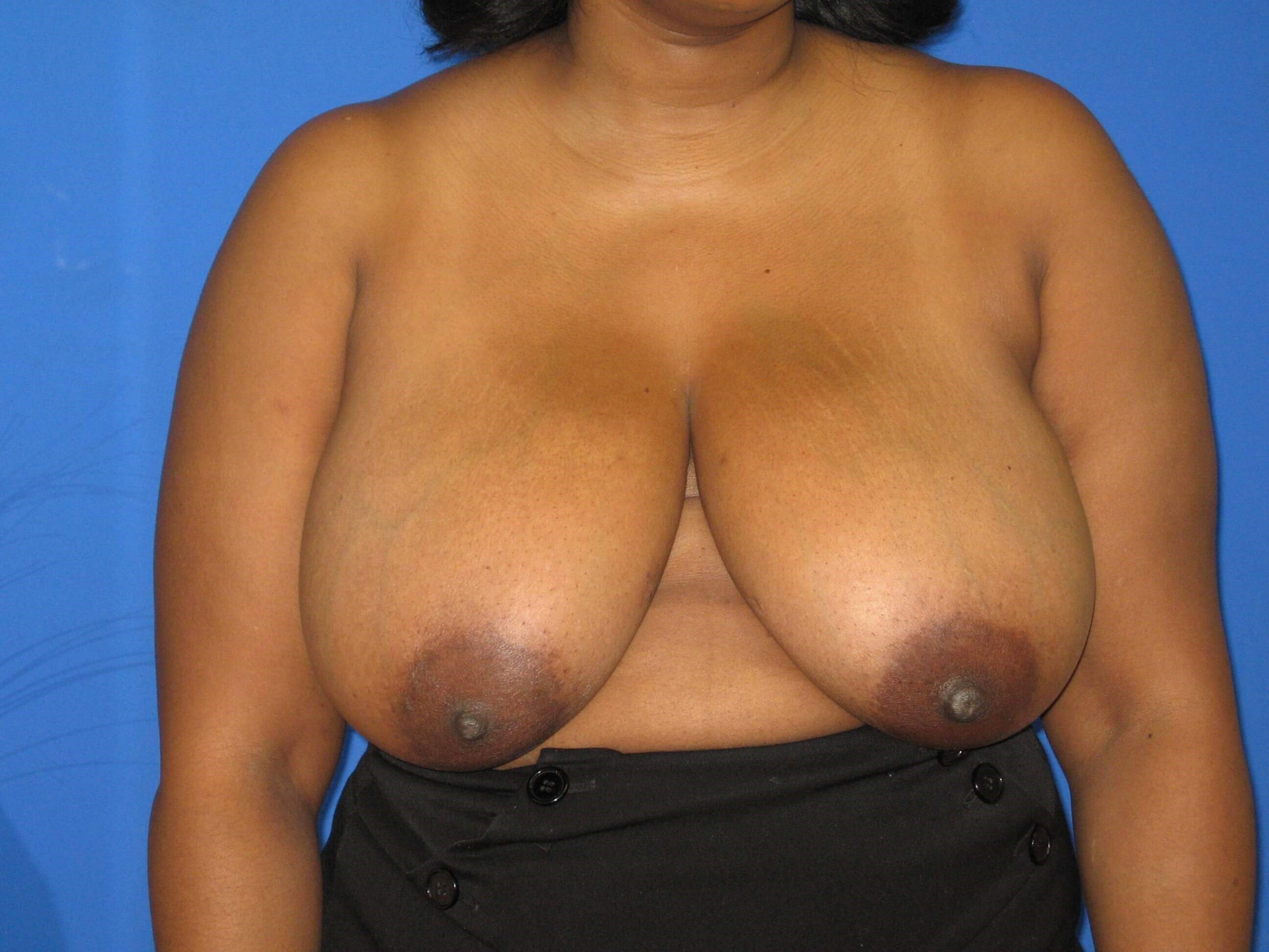 Breast Reduction View Before