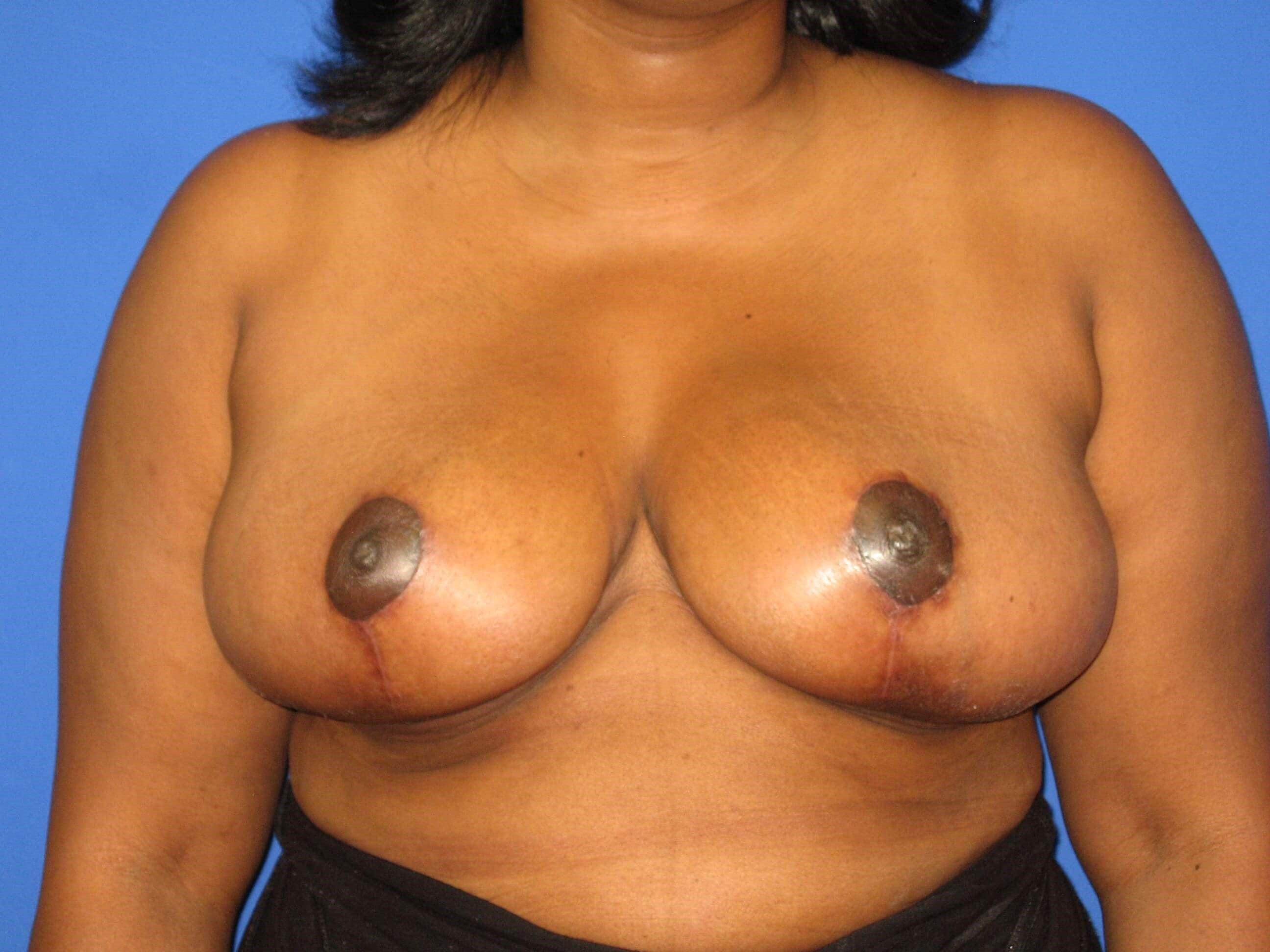 Breast Reduction View After