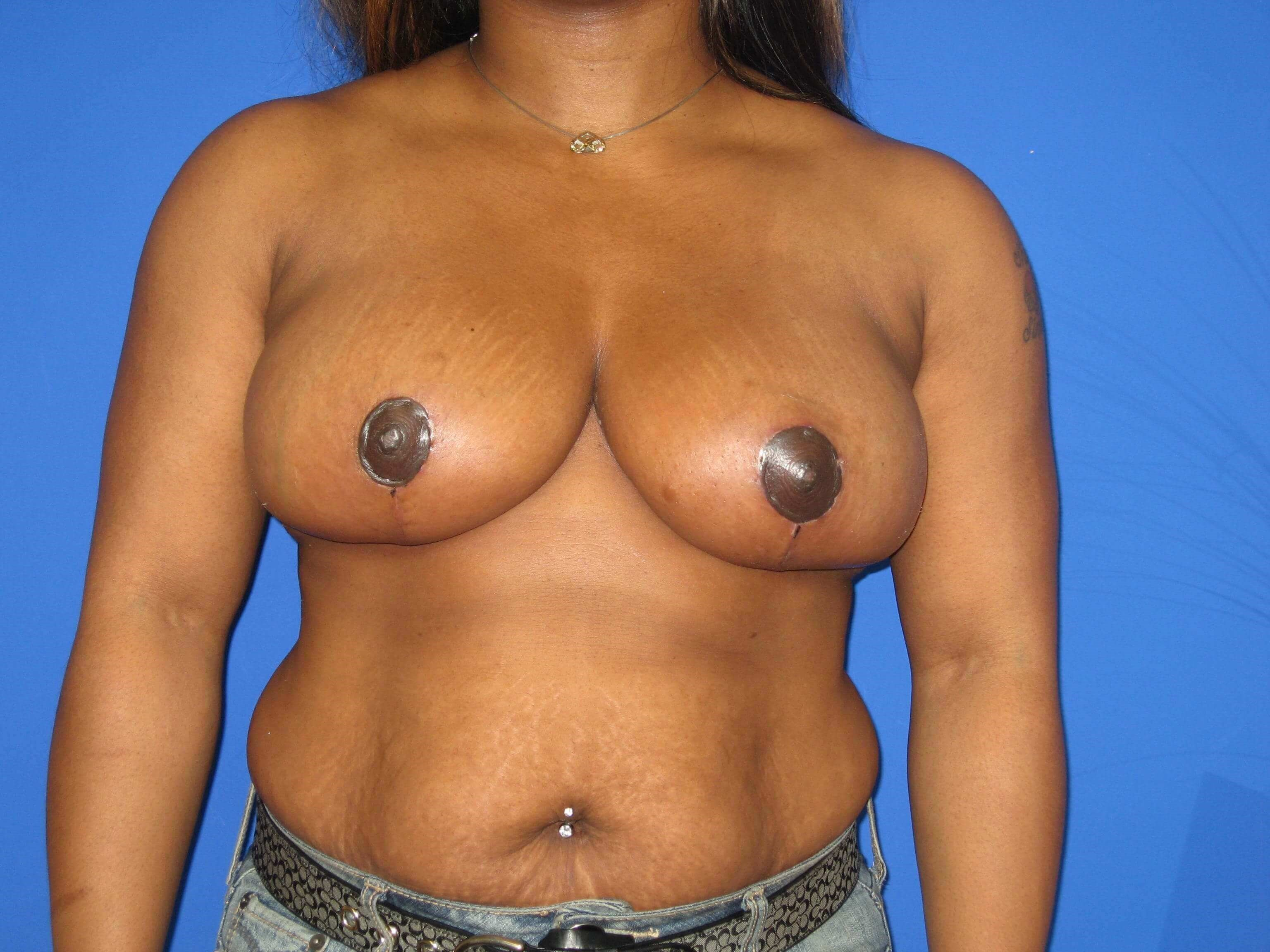 Breast Reduction After