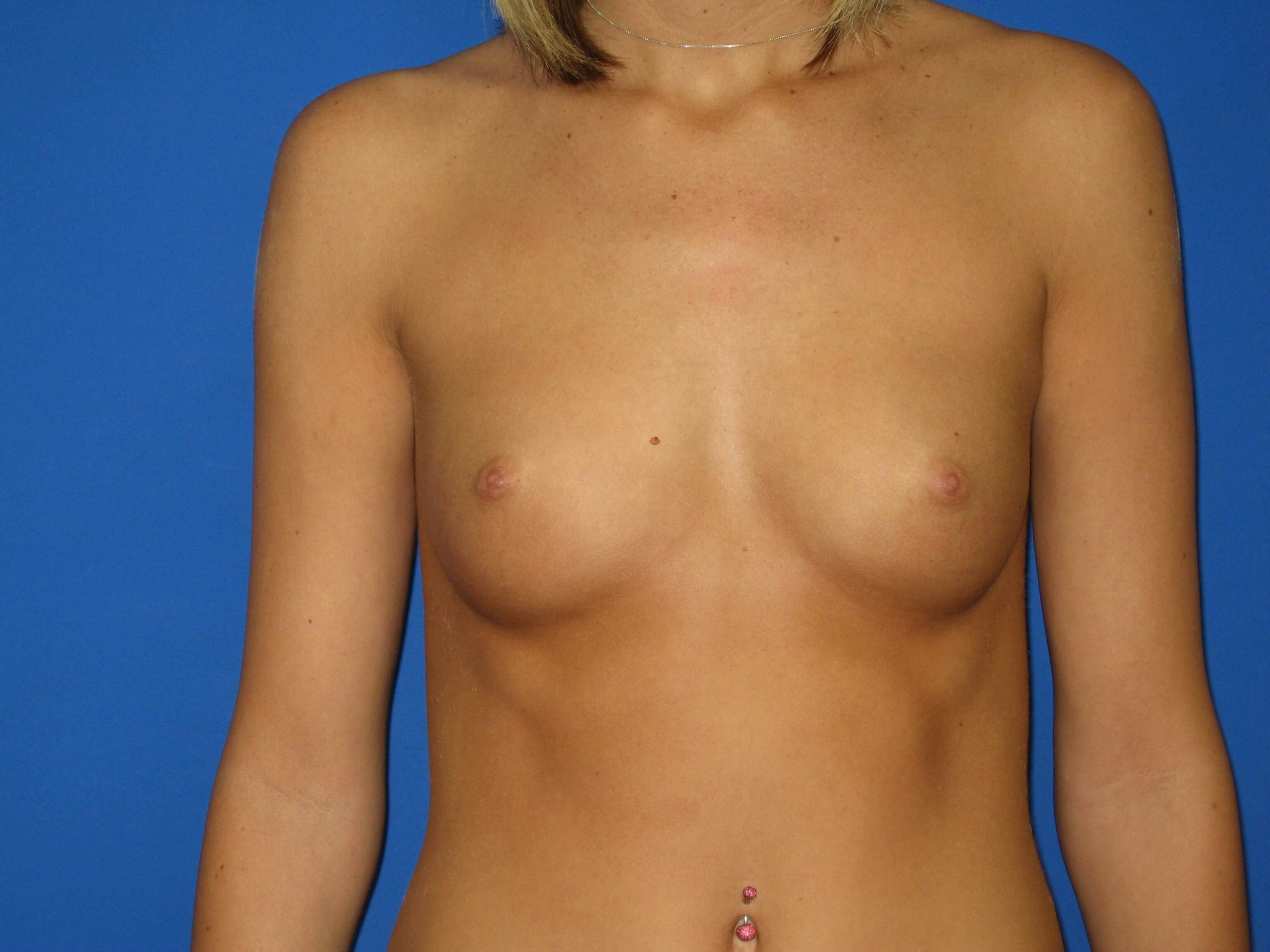Breast Augmenatation Before