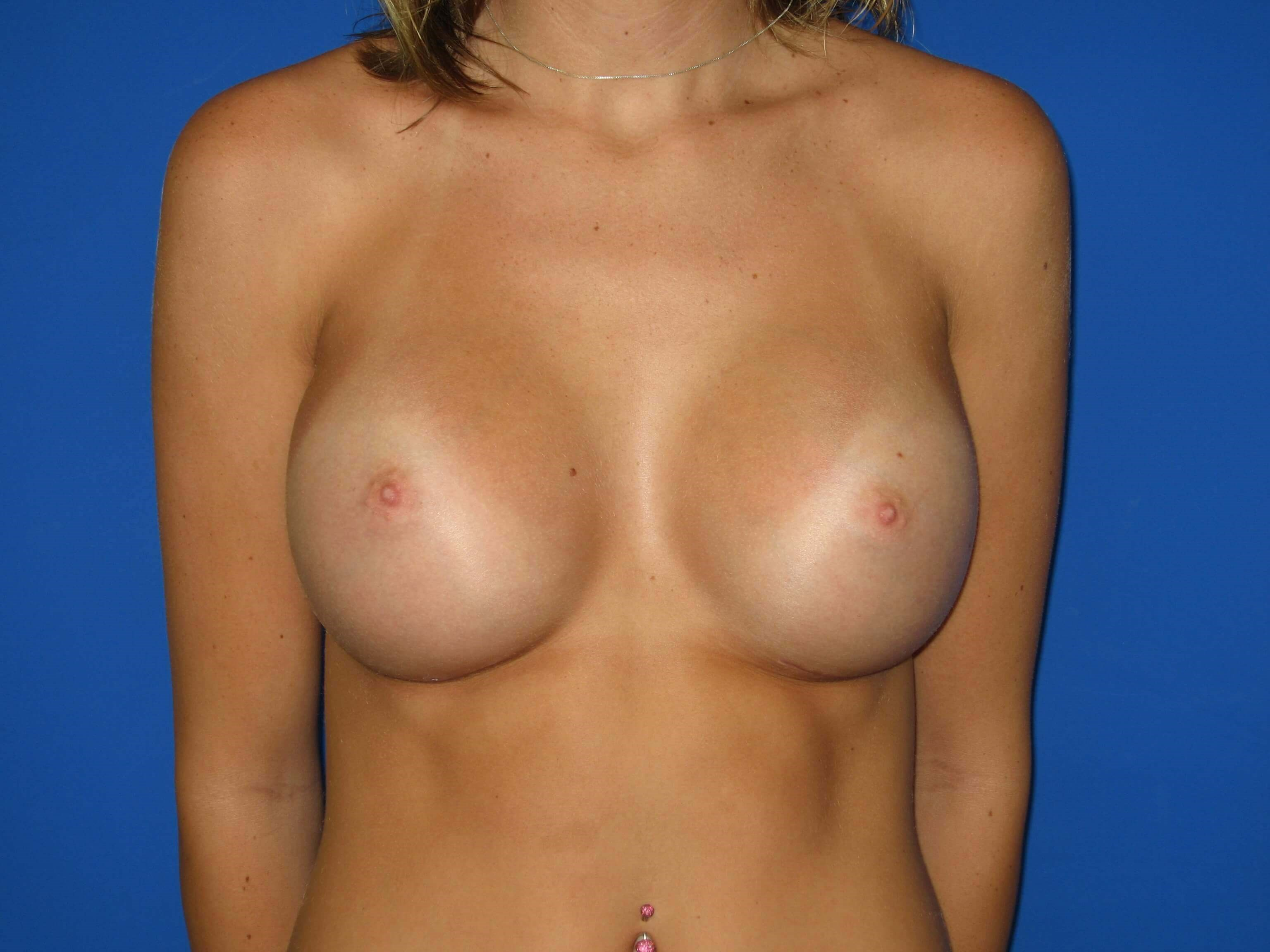 Breast Augmenatation After