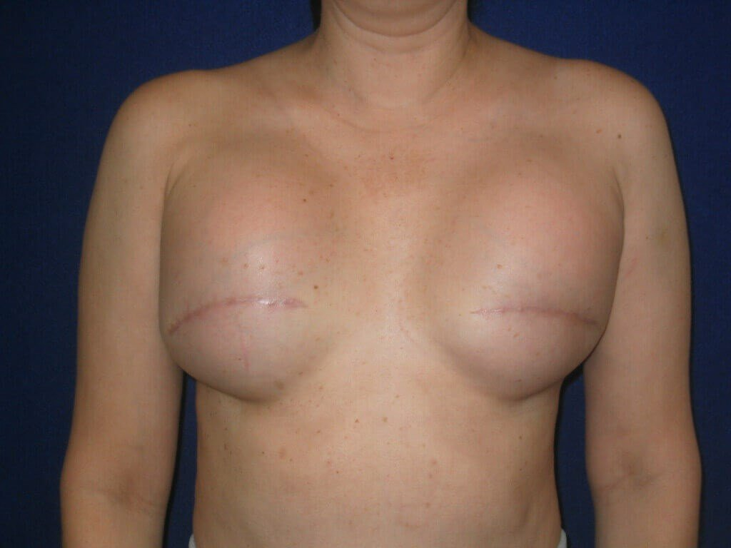 Breast Reconstruction Tissue Expanders