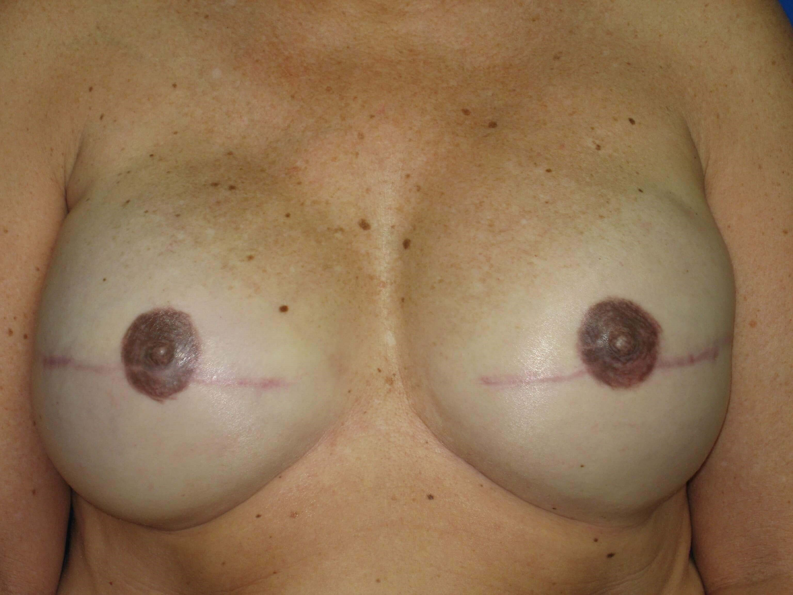 Breast Reconstruction Breast Reconstruction