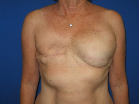 Breast Tramp Flap Before