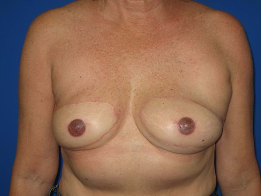 Breast Tramp Flap After