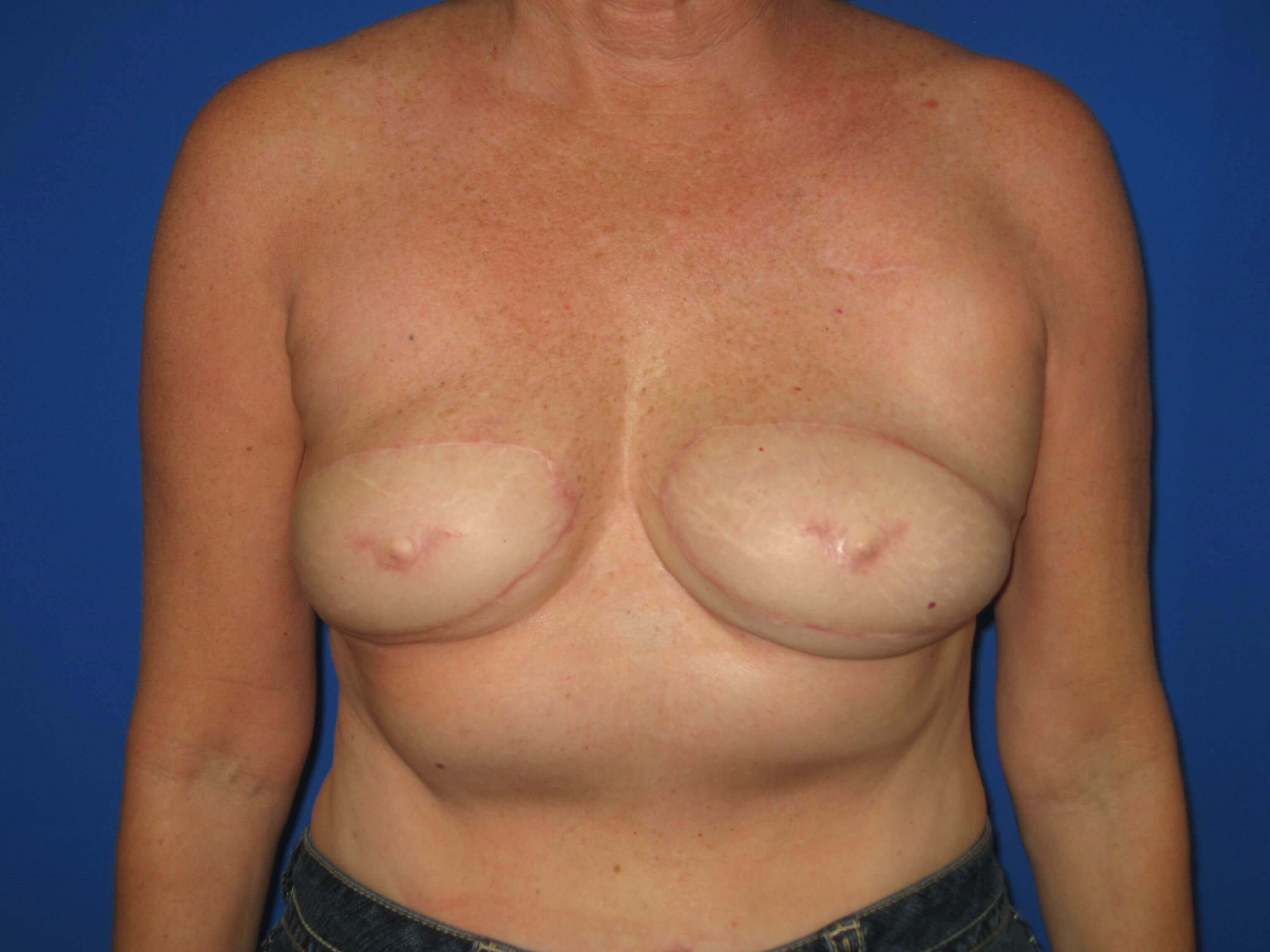 Reconstruction Before/Nipple Reconstruction