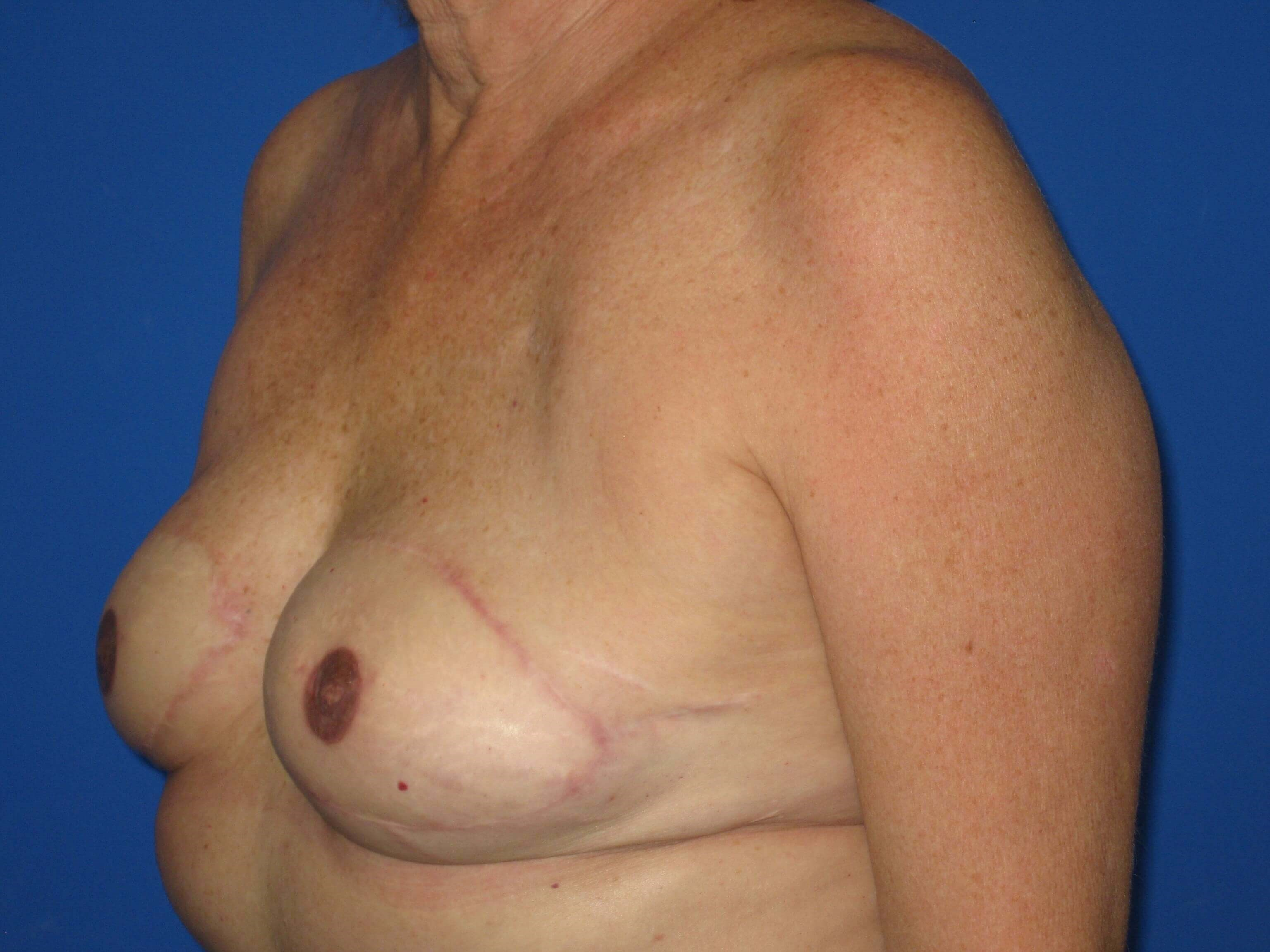 Reconstruction After/Nipple Tattooing