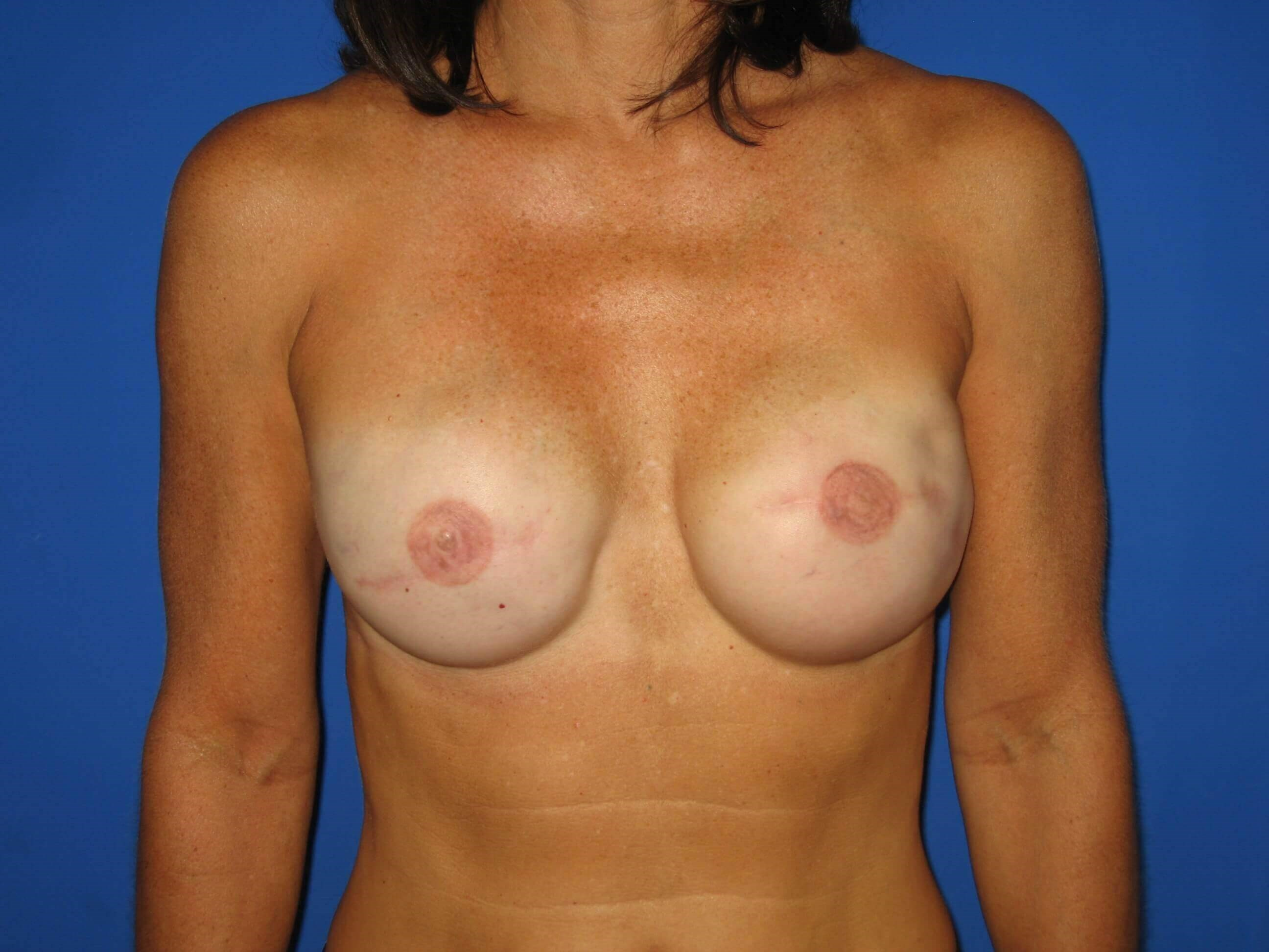 Breast Reconstruction After
