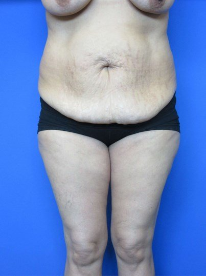 40 Year Old Lady With History Of Weight Loss