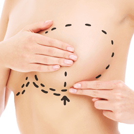 Breast Revision w/Mastopexy