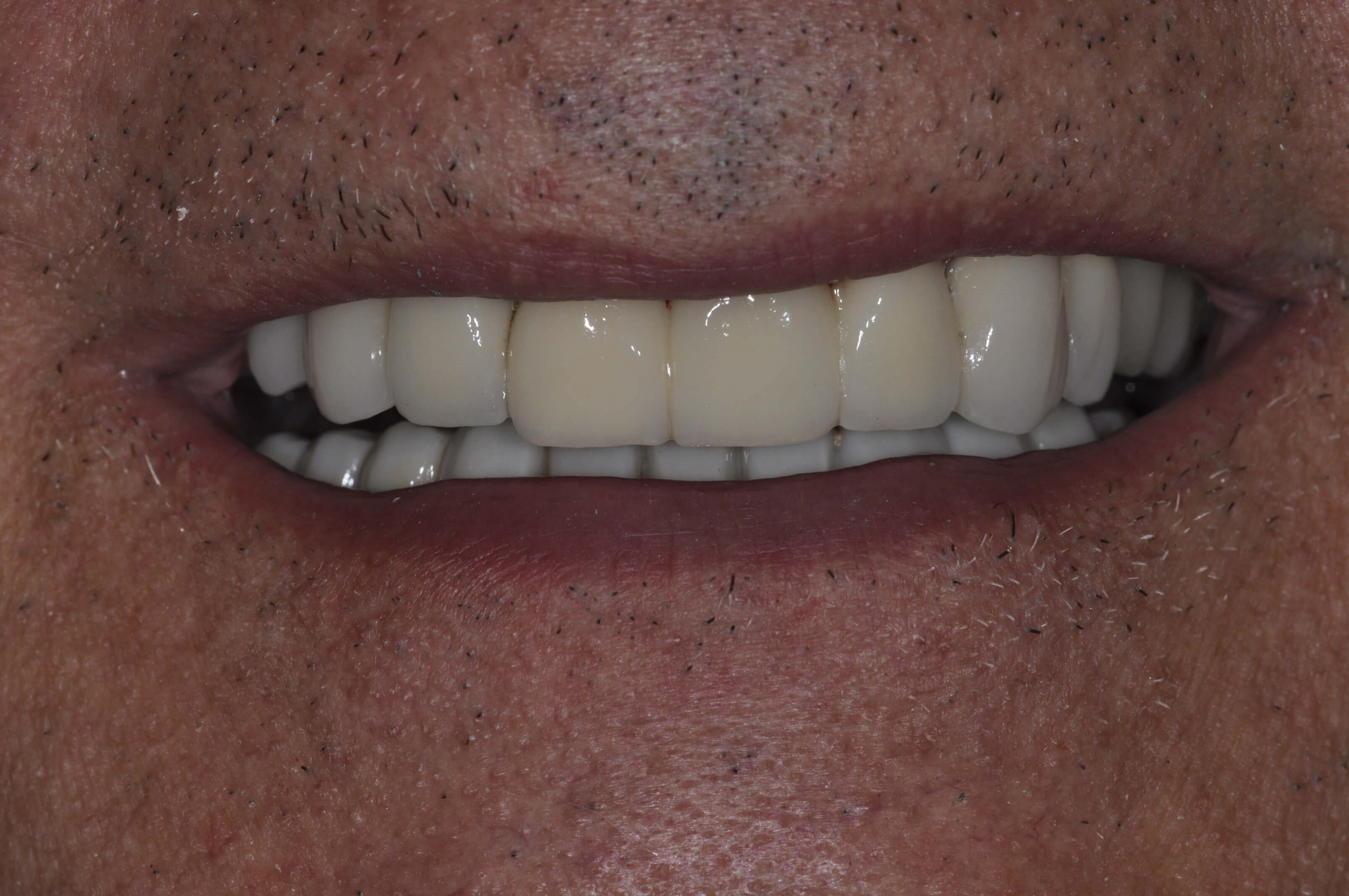 DC Area Smile Makeover with Im After