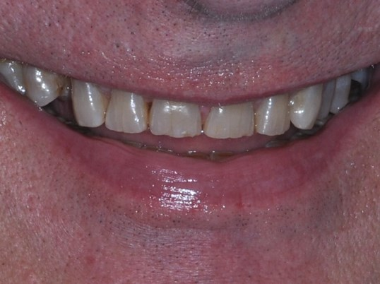 Same Day Smile Makeover with C Before