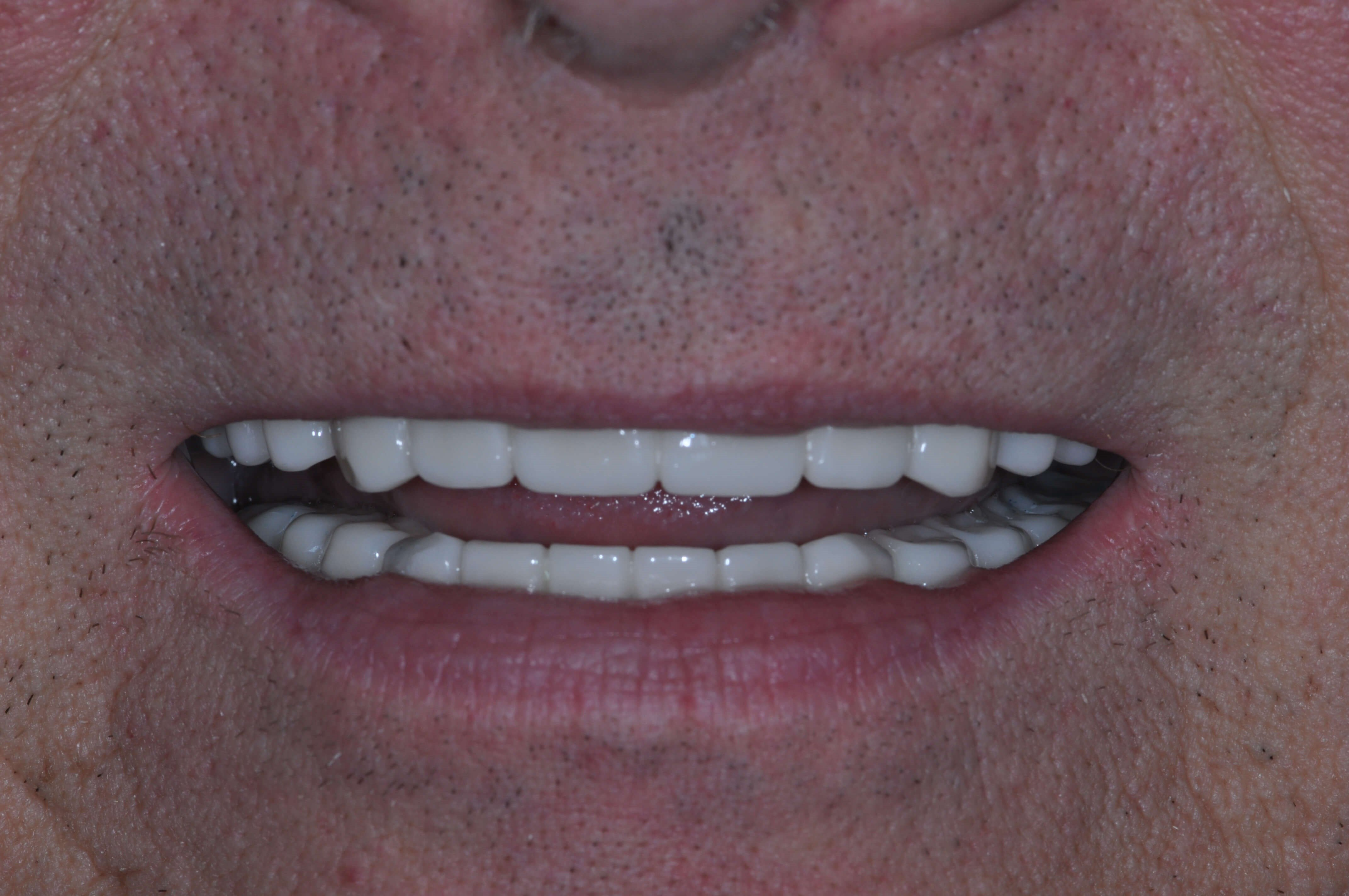 Same Day Smile Makeover with C After