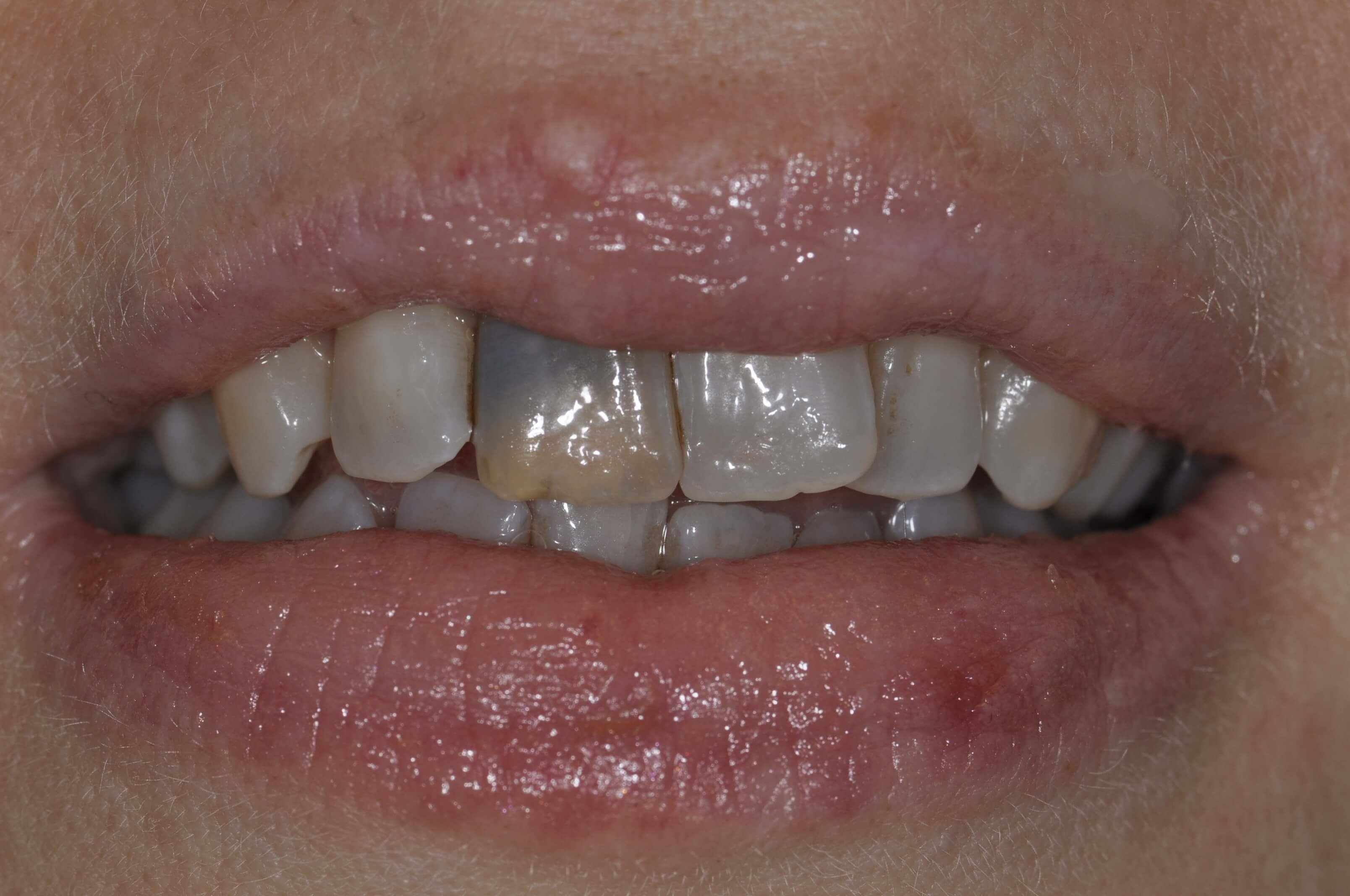 Replace Discolored Tooth Before