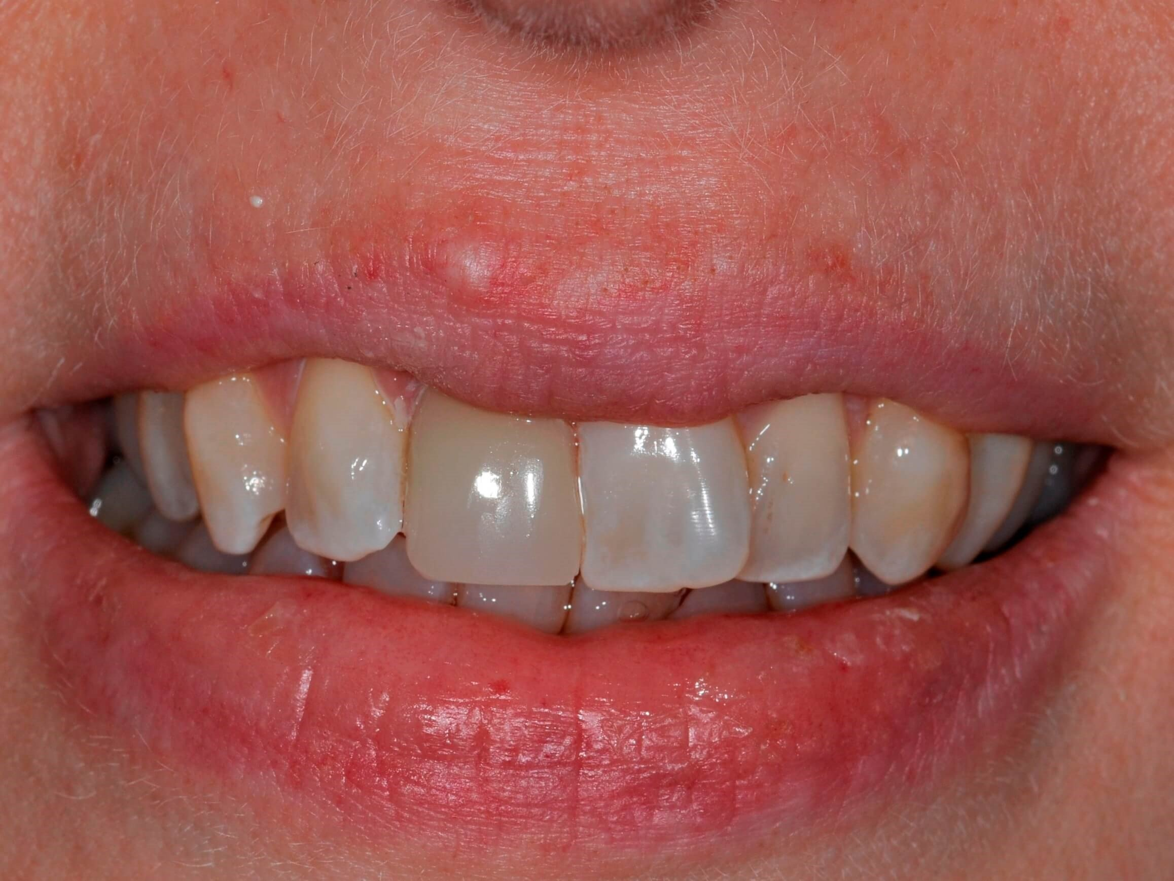 Replace Discolored Tooth After