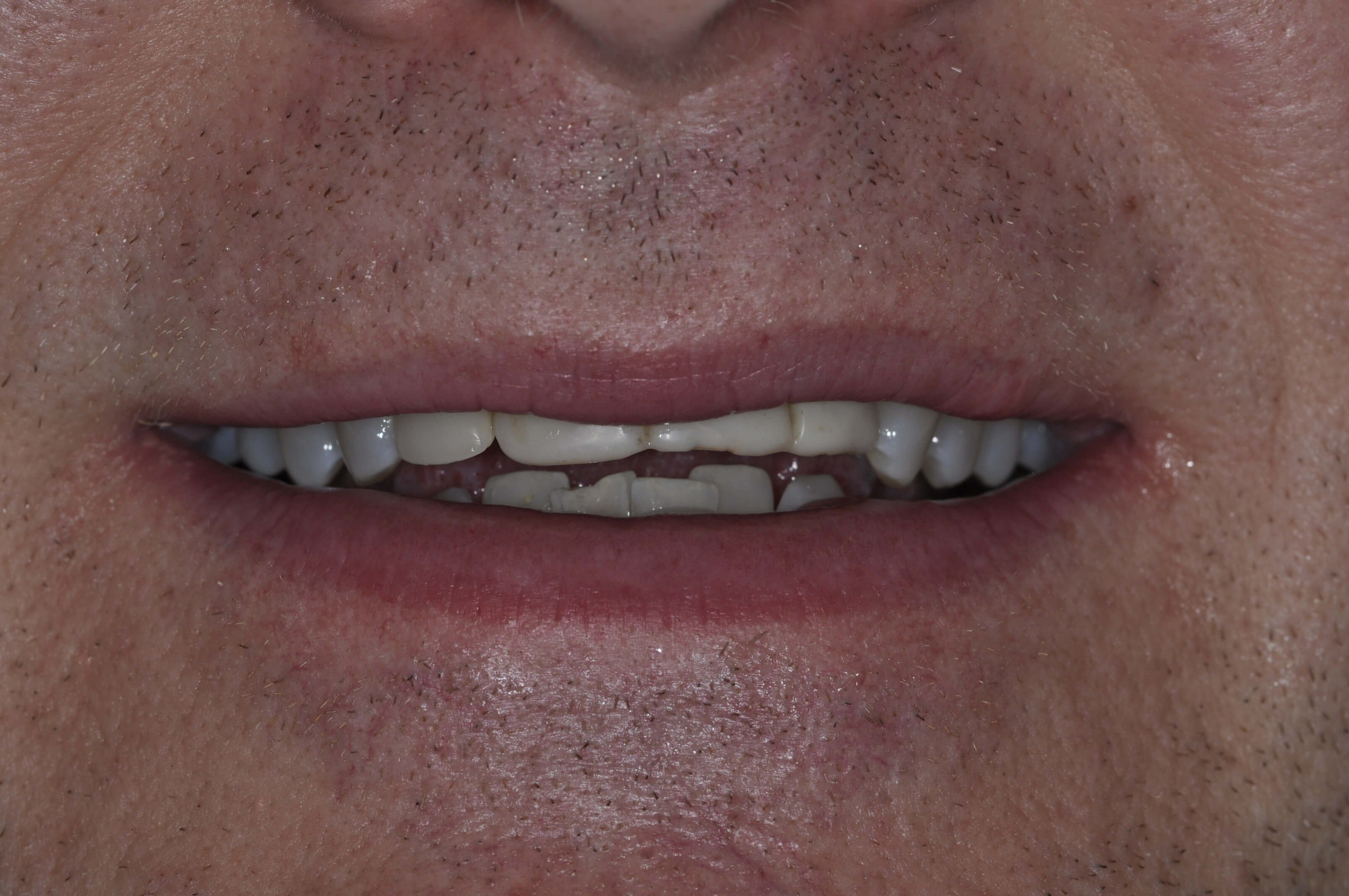 Top and Bottom Veneers Before
