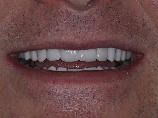 Top and Bottom Veneers After