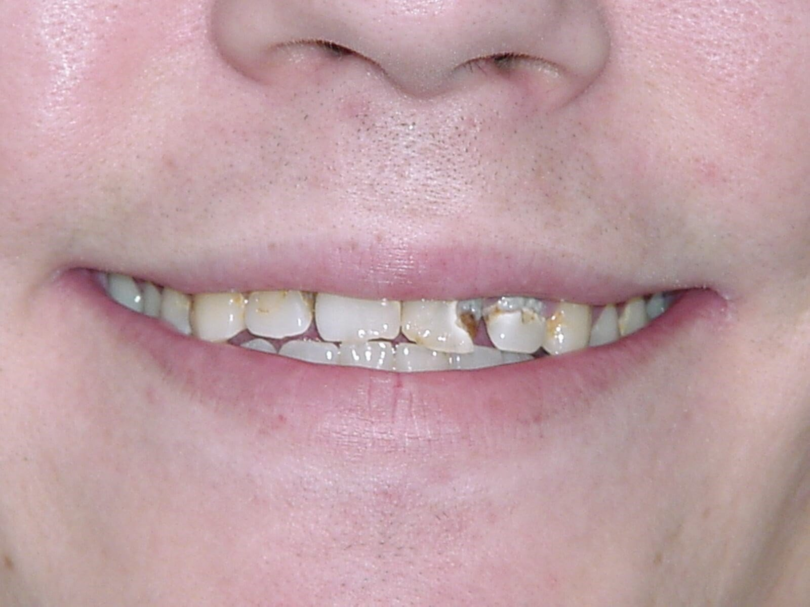 Washington DC Smile Makeover Before