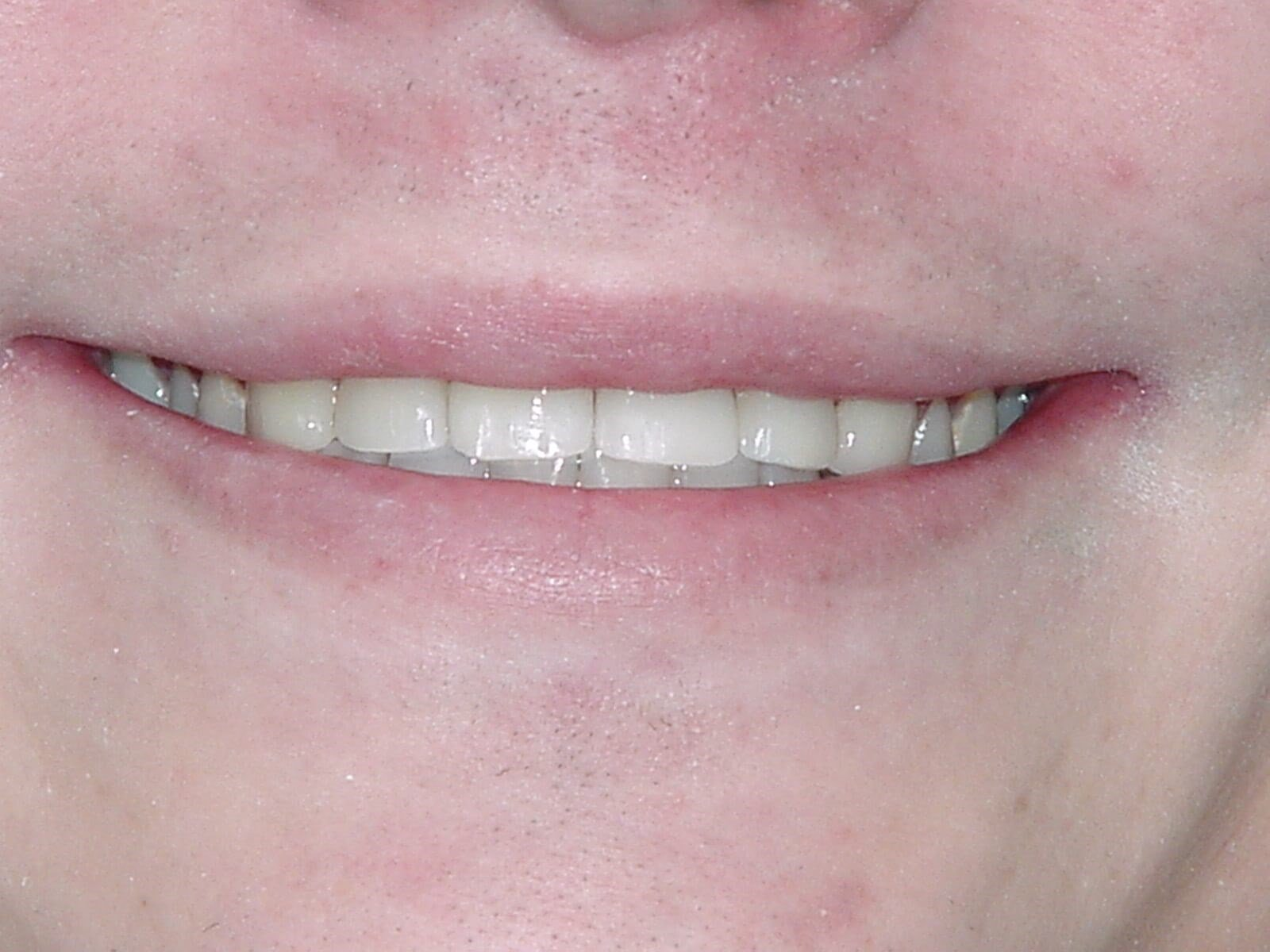 Washington DC Smile Makeover After