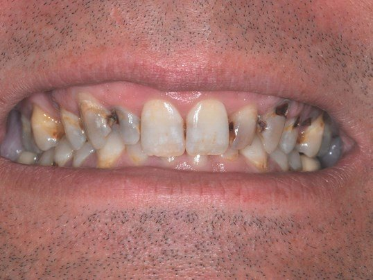 Implant Supported Bridge Before