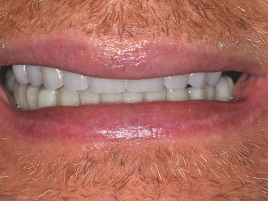 Smile Makeover with Crowns After