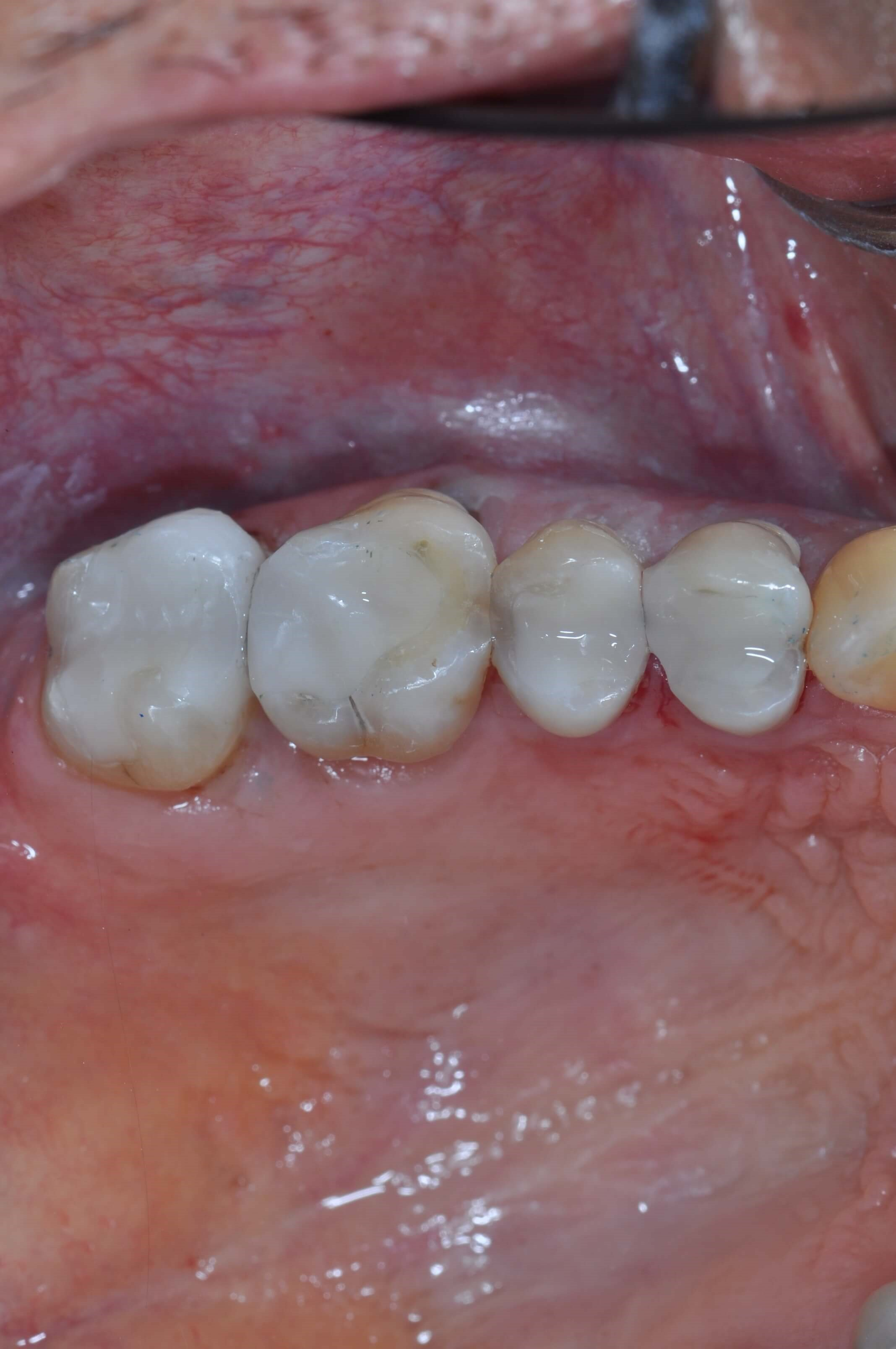 Old Amalgams Replaced After