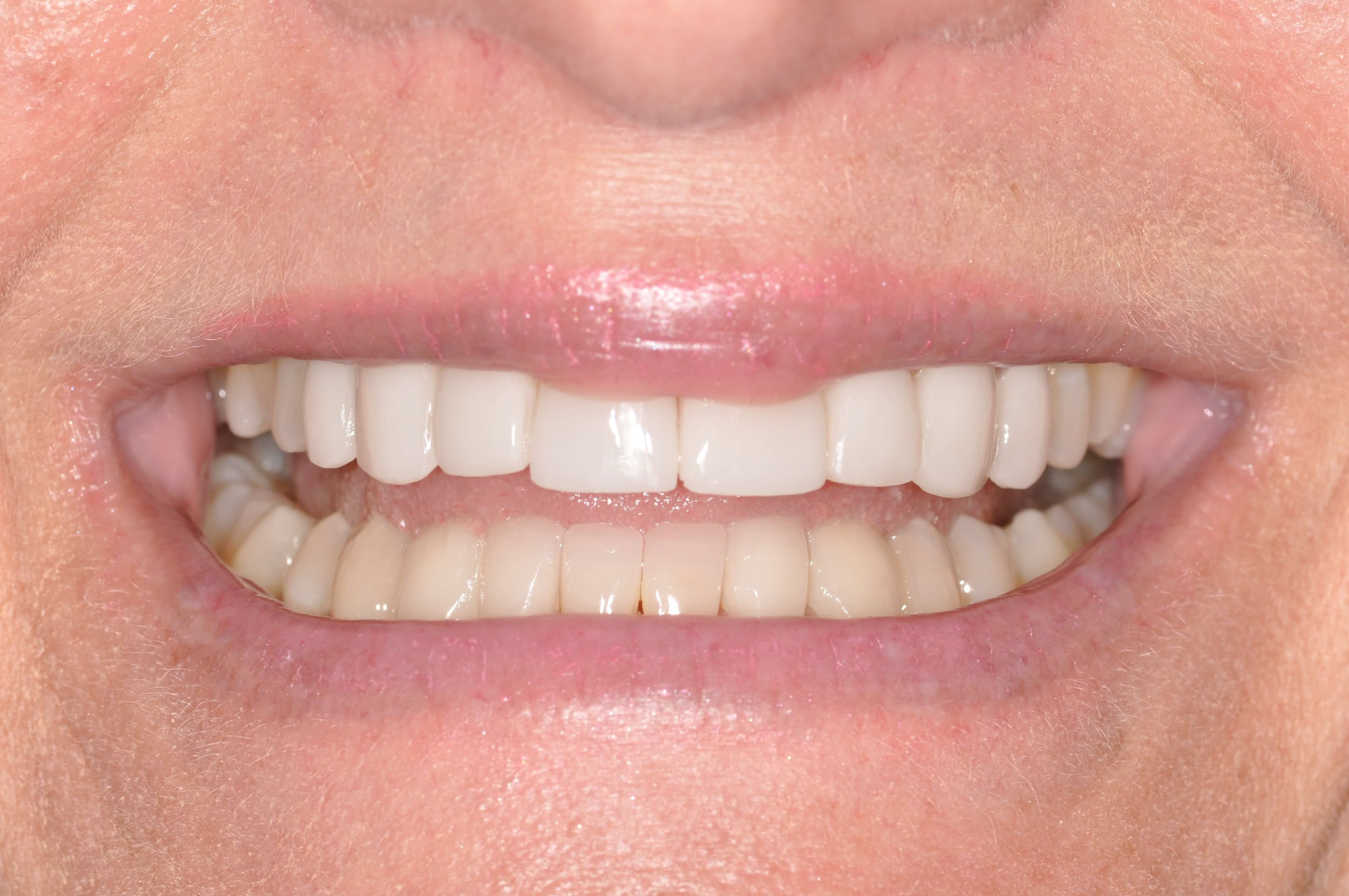A Natural Smile Makeover After