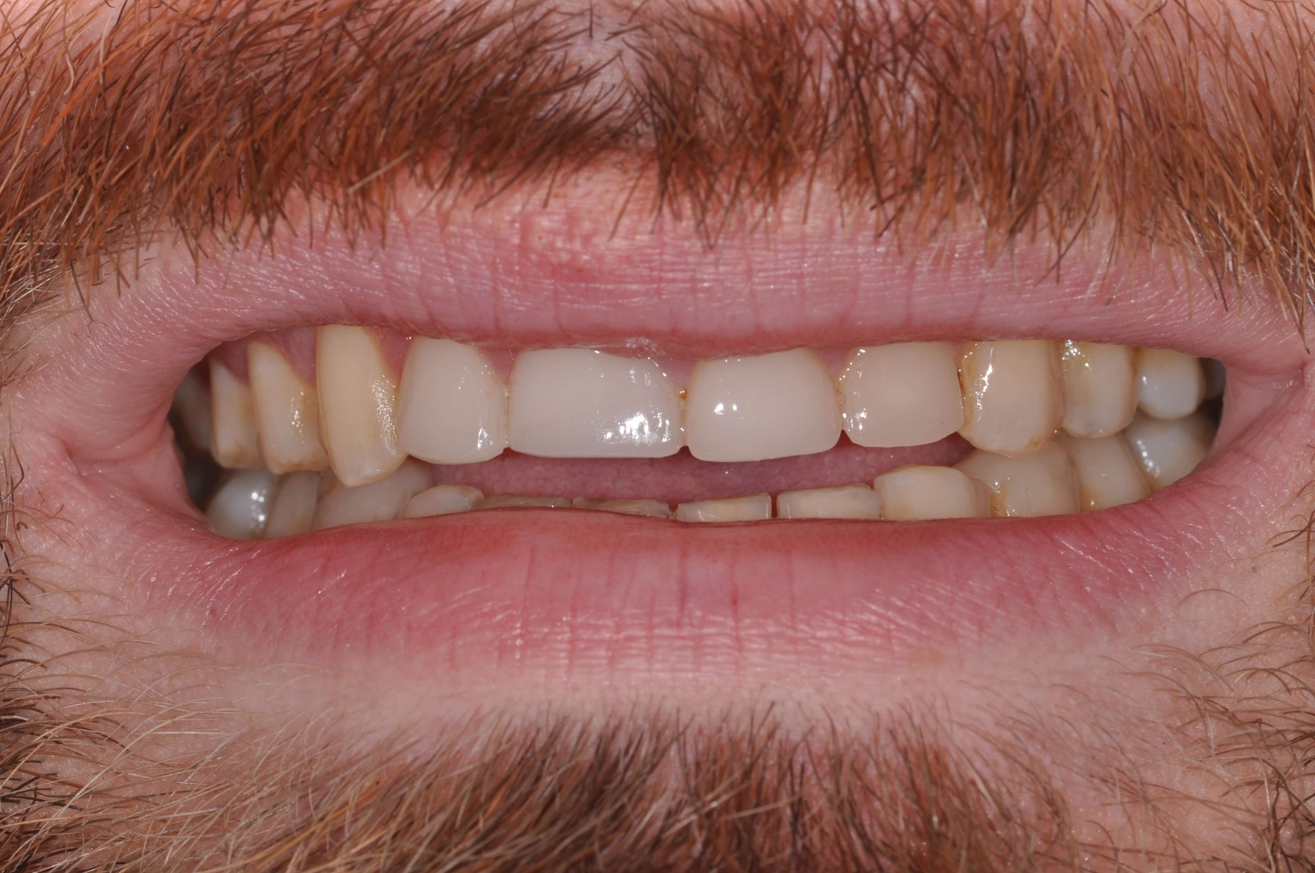 Downtown Man's Smile Makeover Upper Teeth Before Venners