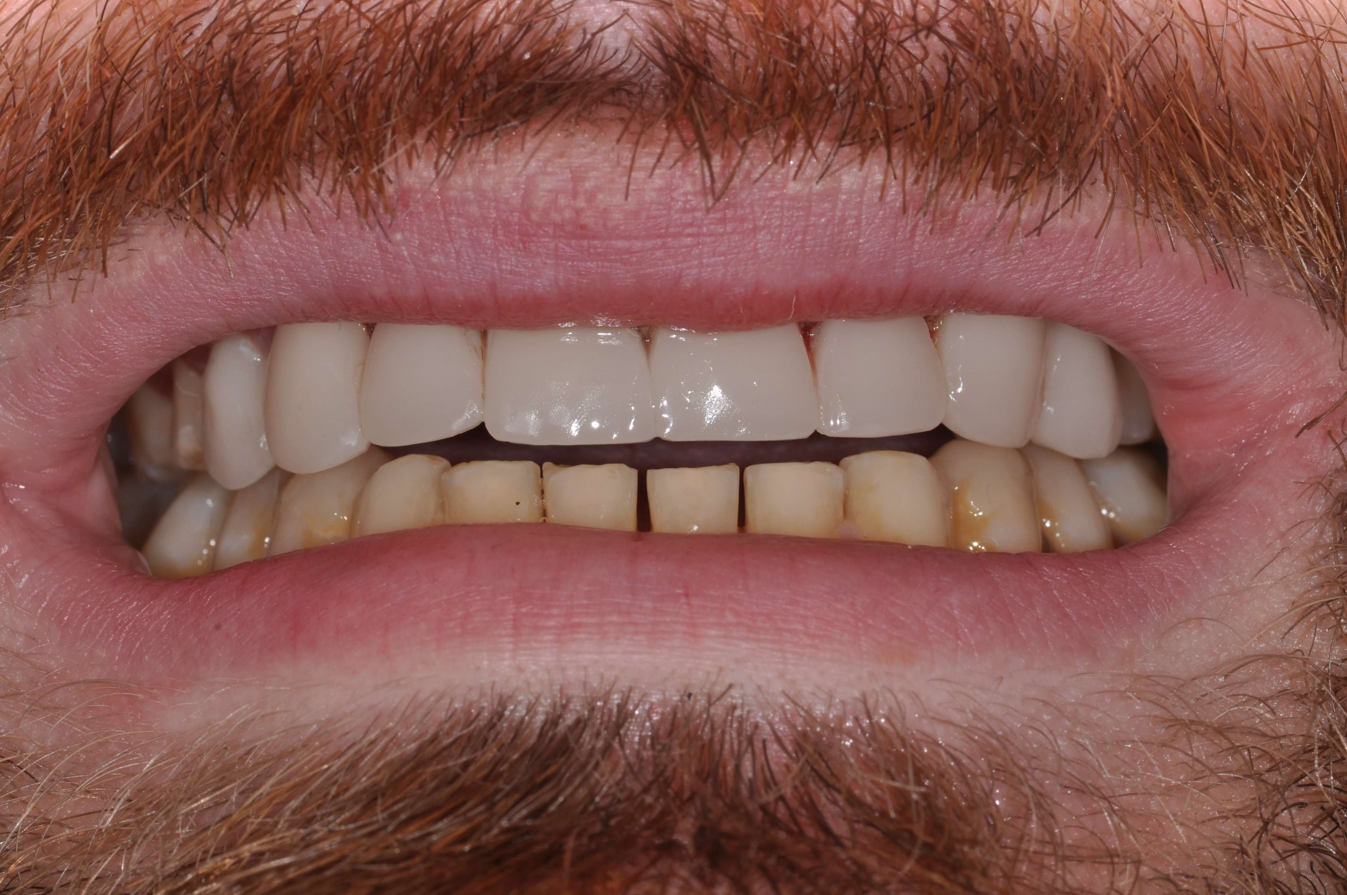 Downtown Man's Smile Makeover Lower Teeth Before Venners