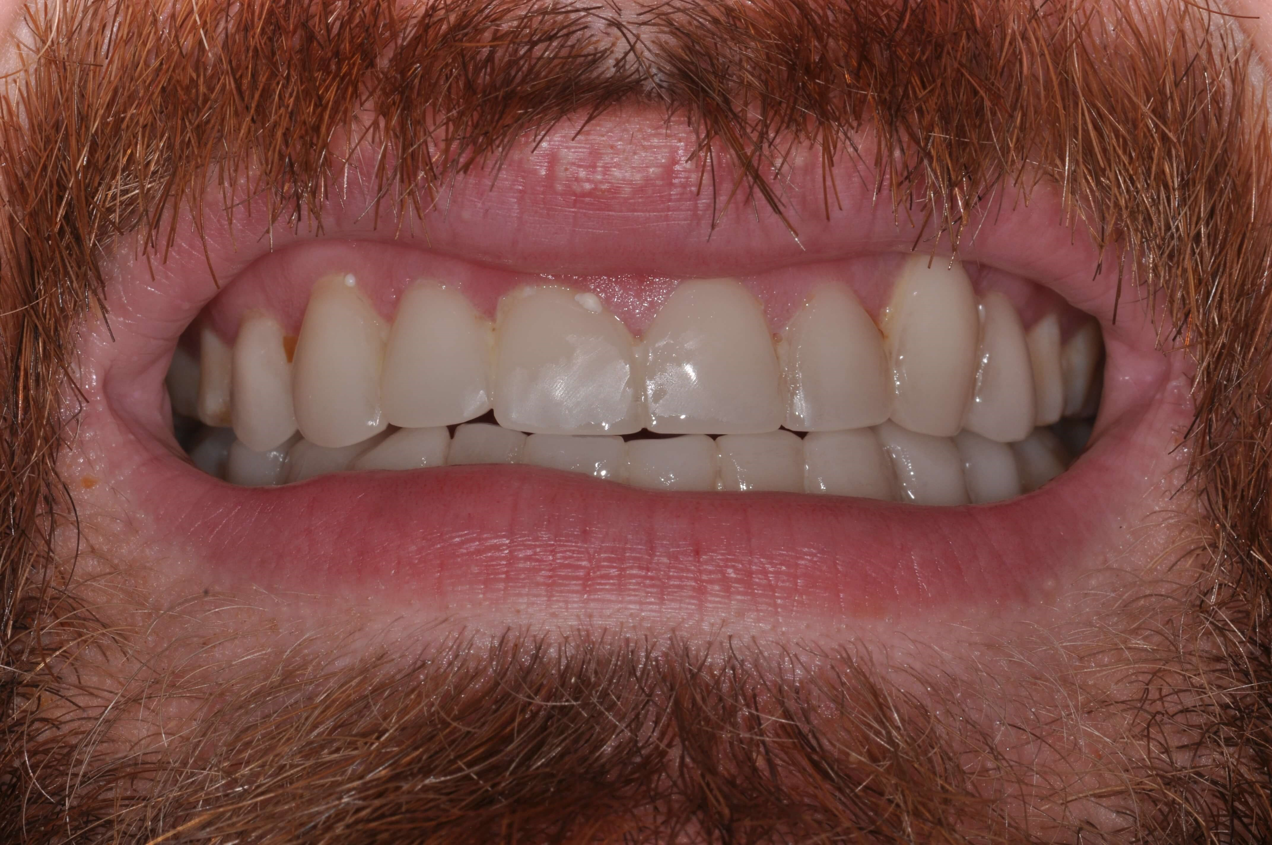 Downtown Man's Smile Makeover Lower Teeth After Venners