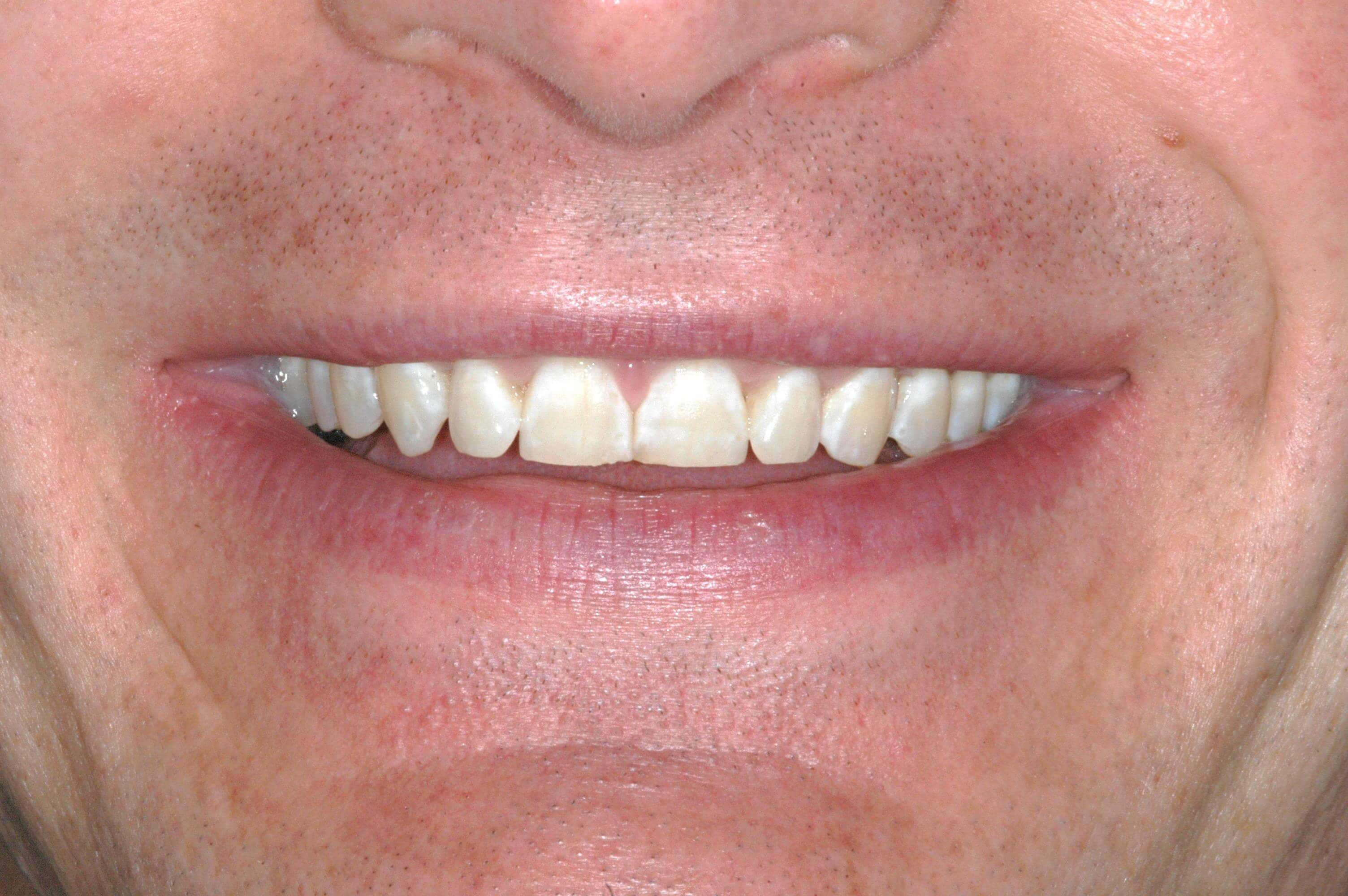 Washington DC Brand New Smile Before