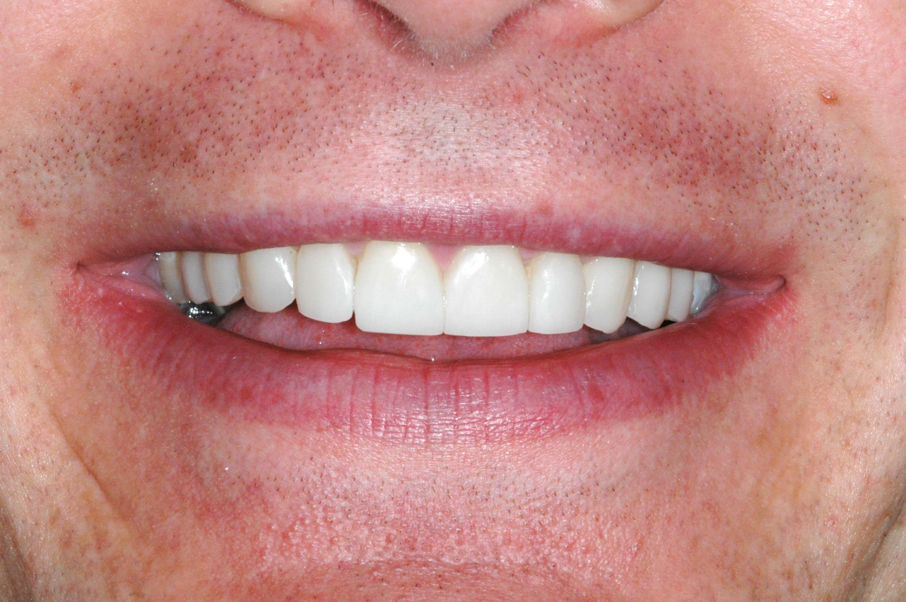 Washington DC Brand New Smile After