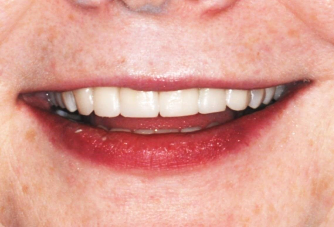 Downtown DC woman's new smile After