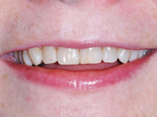 Downtown DC woman's new smile Before