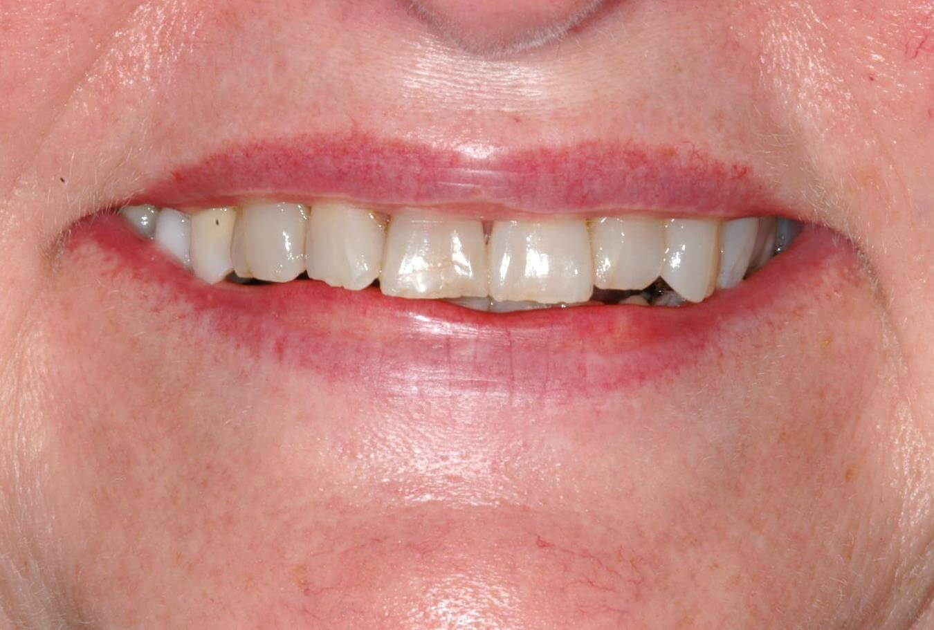 DC Woman's New Smile Before