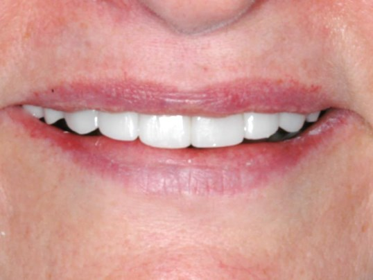 DC Woman's New Smile After